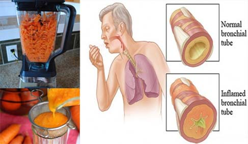 Natural Recipe to Remove Cough and Phlegm from your Lungs