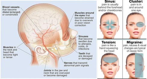 Headaches Reveal What is Wrong With Your Health