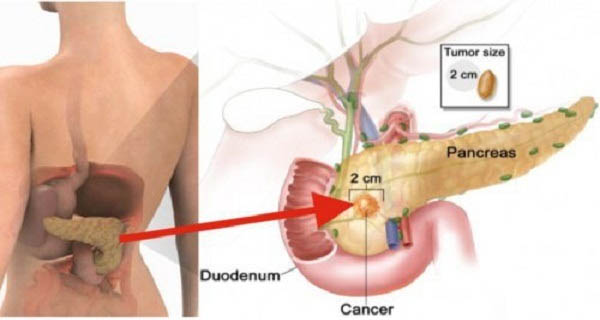 Eating Only 2 Pieces of this Can Increase Your Risk of Pancreatic Cancer