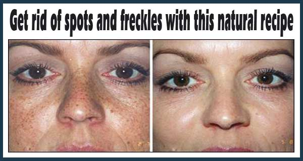Naturally Get Rid Of Dark Brown Spots On Facial Skin