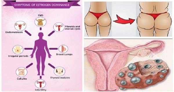 Early Signs That Your Estrogen Levels are Dangerously High Million Women Suffer From This Condition Without Knowing It