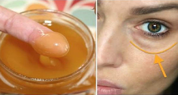 Apply This Mixture On The Dark Circles Under Your Eyes And Wake Up Without Them Results Guaranteed