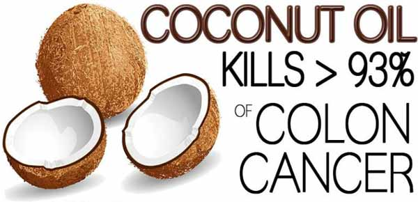 Doctors are Shocked Coconut Oil Kills 93 percent of Cancer Cells in the Colon Video