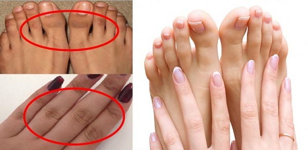 Get Rid of Dark Finger Joints With These 4 Natural Remedies