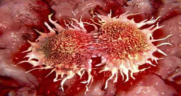 SECRET REVEALED 10 Biggest Causes of Cancer That We Use Everyday