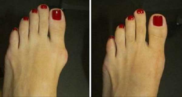 3 Simple But Effective Ways to Get Rid of Hallux Valgus Without Going Under the Knife