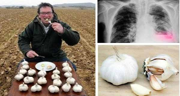 Amazing He Ate Garlic On an Empty Stomach Every Day Heres What Happened