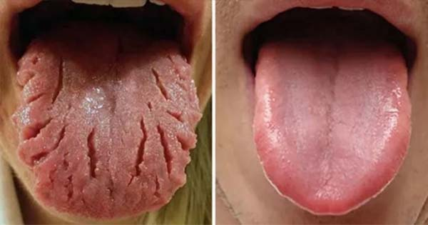 Be Aware of These 9 Changes On the Tongue It Reveal Almost All Your Diseases