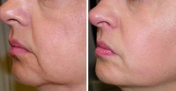 No More Wrinkles and Sagging Skin on Your Face 2 Ingredients Only
