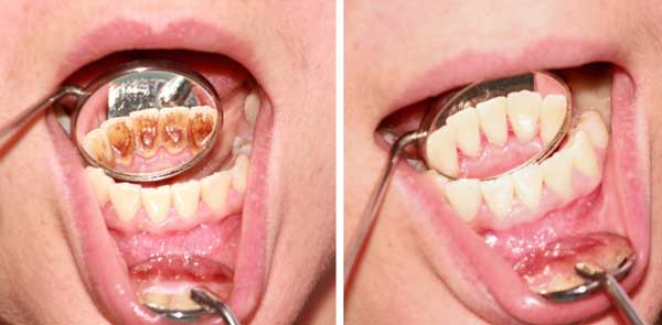Say Goodbye to Bad Breath Tartar and Plaque And Kill Harmful Bacteria In the Mouth With This Ingredient