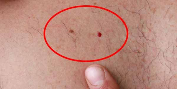 Take a Good Look at These Two Moles If You Have Them You Should Know That One Of Them is a Potential Cancer Photo Included