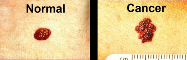 normal vs cancer moles skin cancer