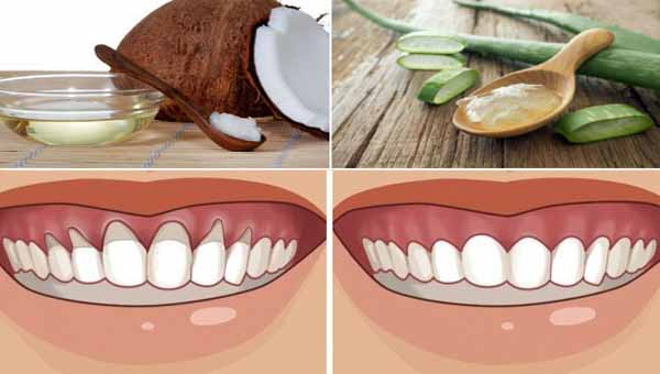 Gargle With These Things and See What Happens to Your Teeth
