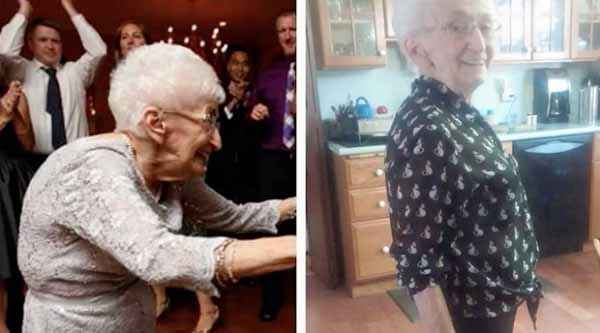 This 85 Years Old Woman Had a Hunchback For Decades This Fixed It Video