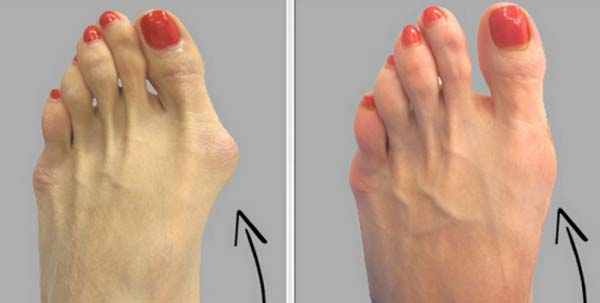 Why Do Doctors Keep This Simple Recipe Away From The Public Here is How to Get Rid of Bunions Completely Natural