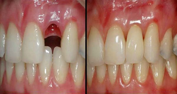 Amazing Discovery Goodbye Dental Implants Here is How to Grow Your Own Teeth In Just 9 Weeks